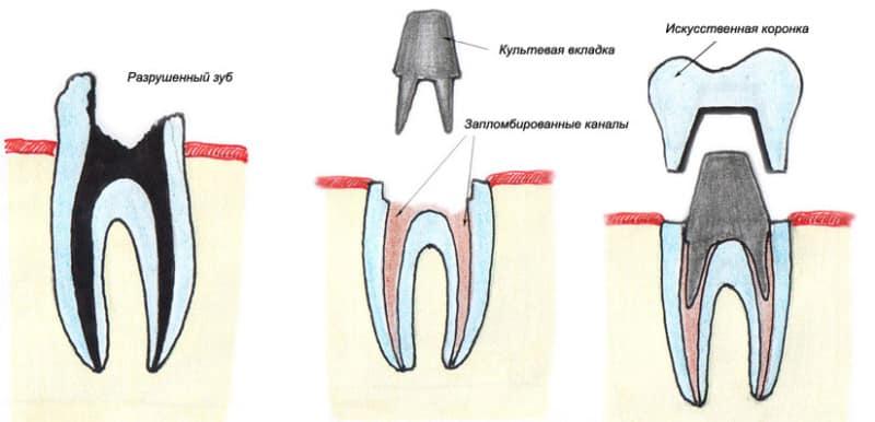 Зубная вкладка фото