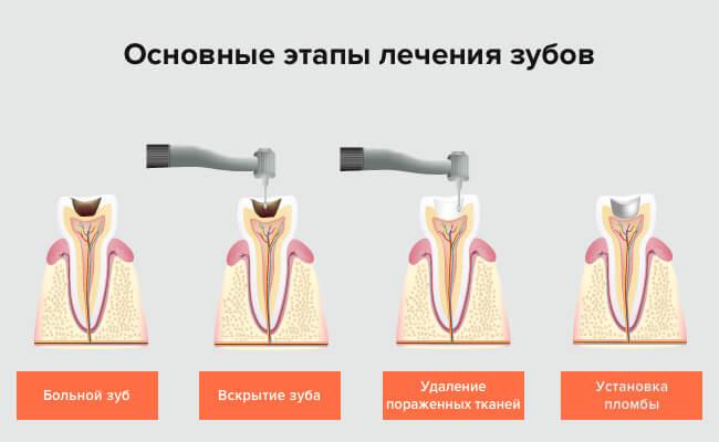 этапы лечения кариеса фото