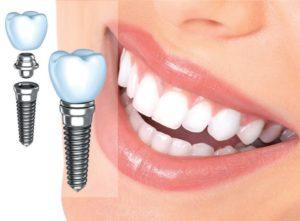 иплантация зубов - отзывы