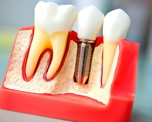 коронки на зубы - изготовление