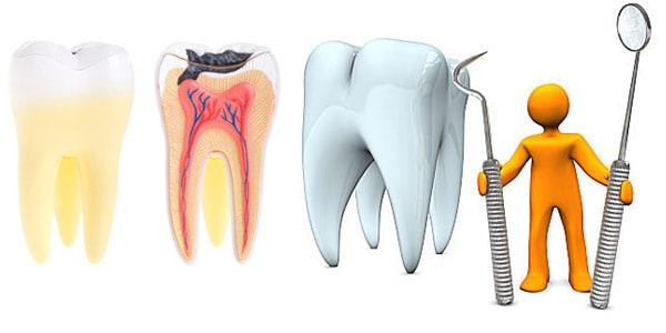 болит зуб после лечения пульпита - что делать