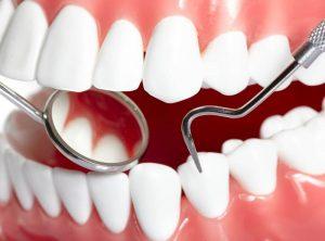 Профилактическая стоматология фото