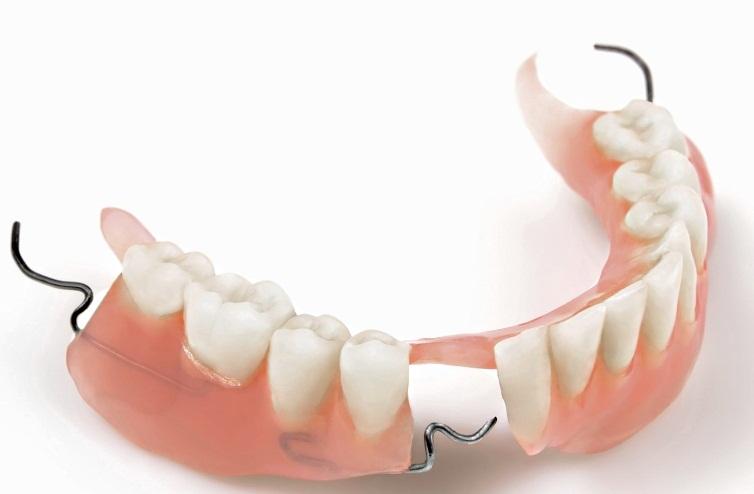 Протезирование зубов виды и цены спб приморский