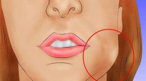 После имплантации зуба опухла щека