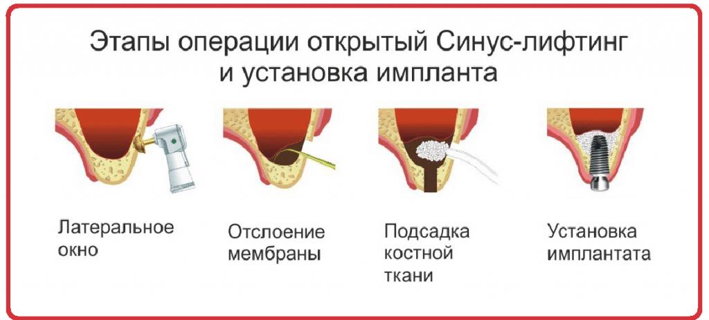 открытый синус-лифтинг этапы операции