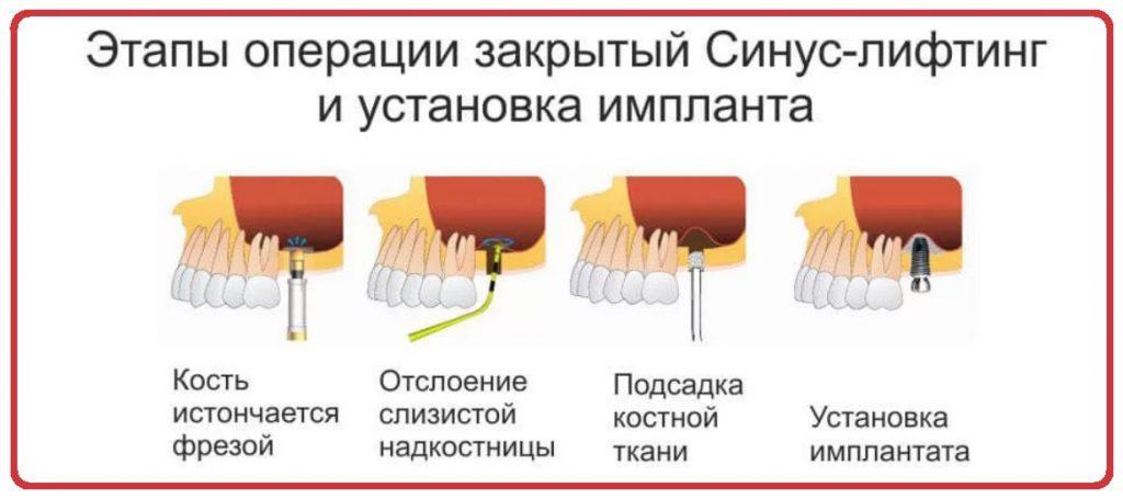закрытый синус-лифтинг этапы операции
