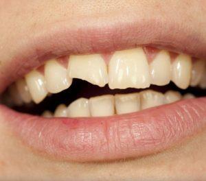 Что делать, если сломан зуб