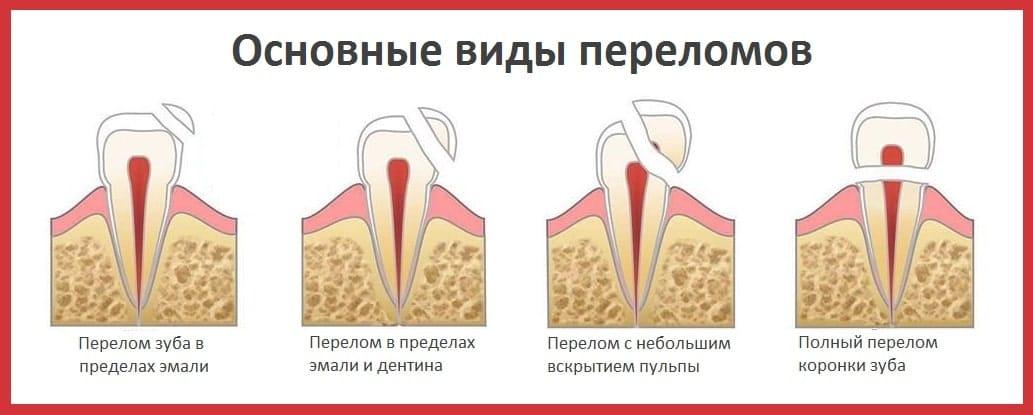 Виды переломов зубов