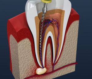 Депульпация нерва зуба