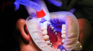 Чистка зубного налета лазером в СПб