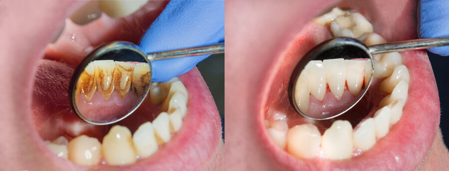 Лечение зубного налета в Санкт-Петербурге