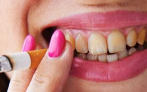 Налет на зубах от курения