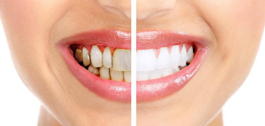 Сравнение зубов с налетом и без него