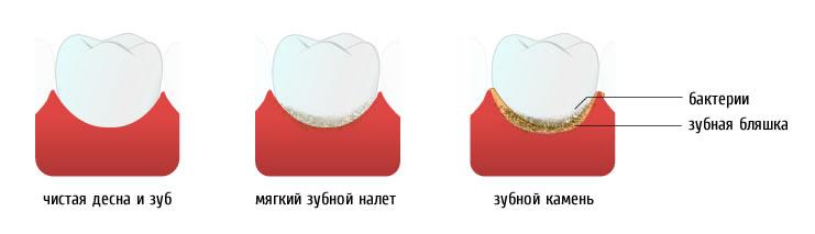 мягкий зубной налет и зубной камень