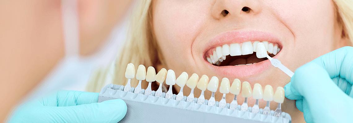 Отбеливание зубной эмали у стоматолога